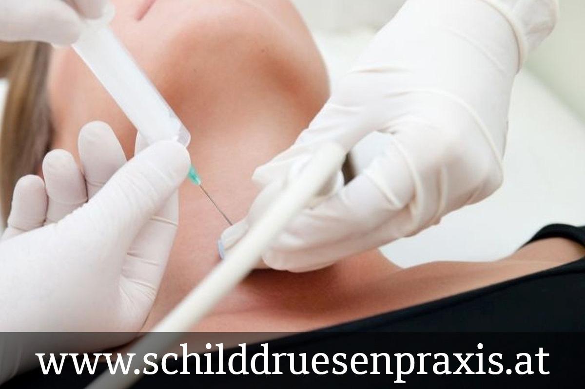 Feinnadelpunktion - Biopsie der Schilddrüse
